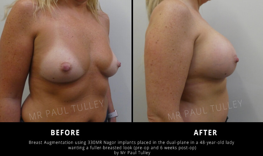 Breast Augmentation using Implants in the Dual Plane