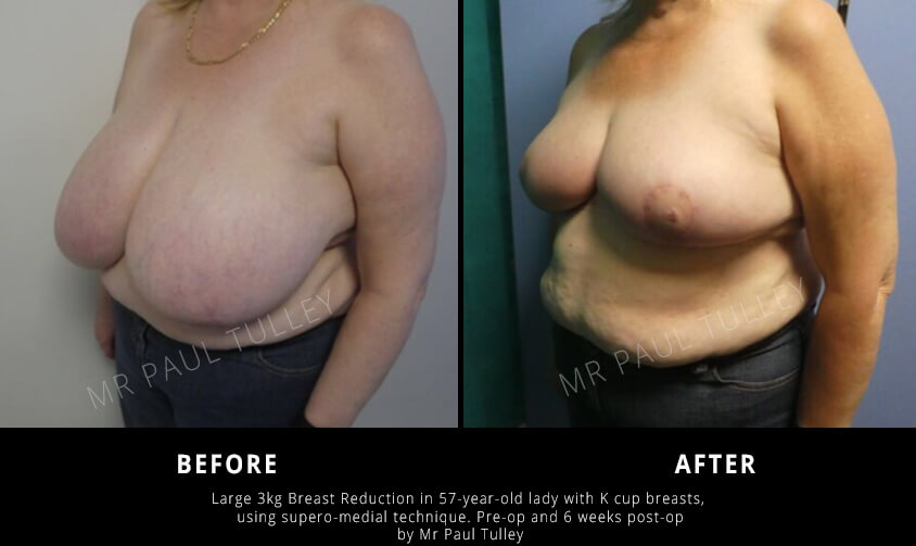 Huge Breast Reduction London