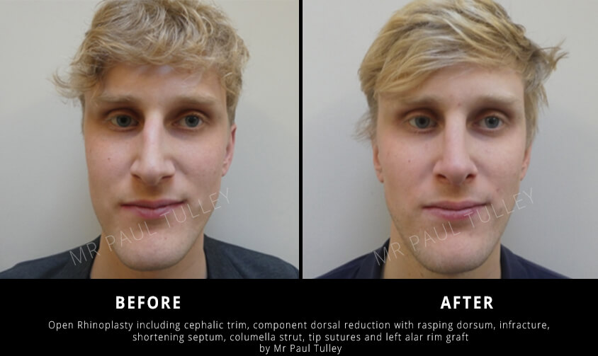Male Rhinoplasty Results