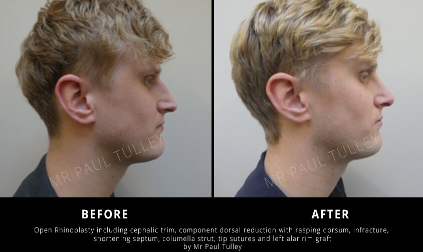 Male Nose Surgery Results