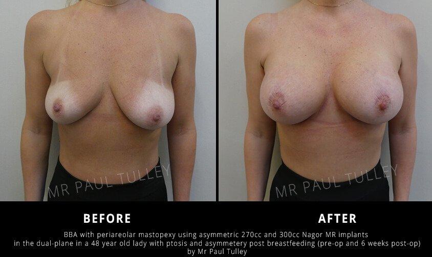 London breast uplift surgery