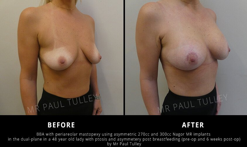London breast uplift surgery