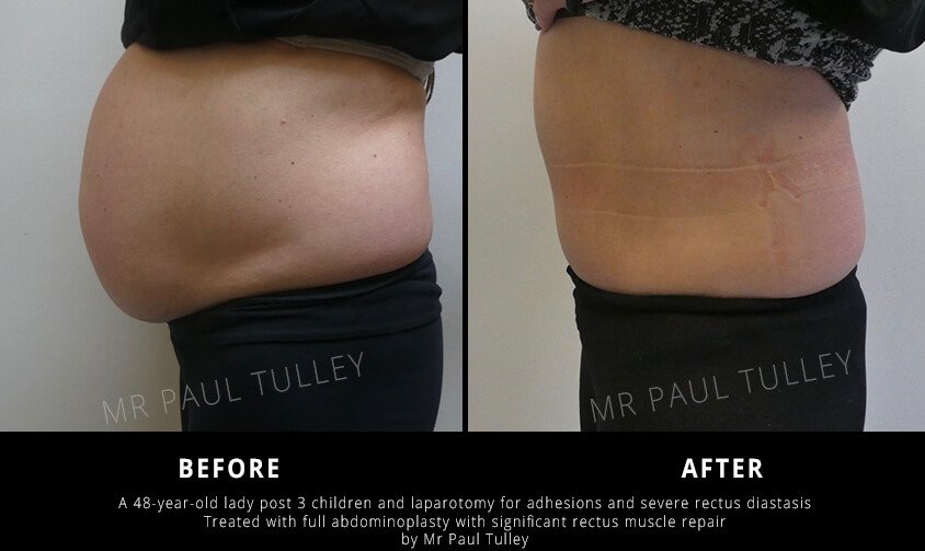 Tummy Tuck with Muscle Repair