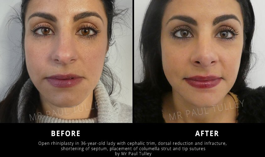 Rhinoplasty with Dorsal Reduction