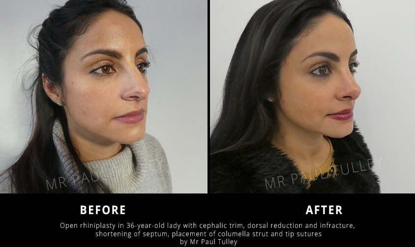 Dorsal Reduction Nose Job