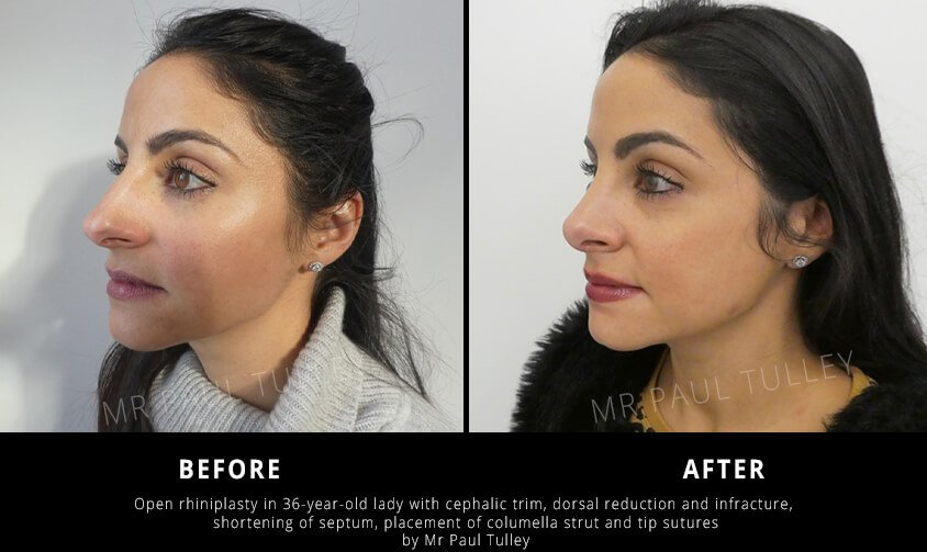Open Rhinoplasty London