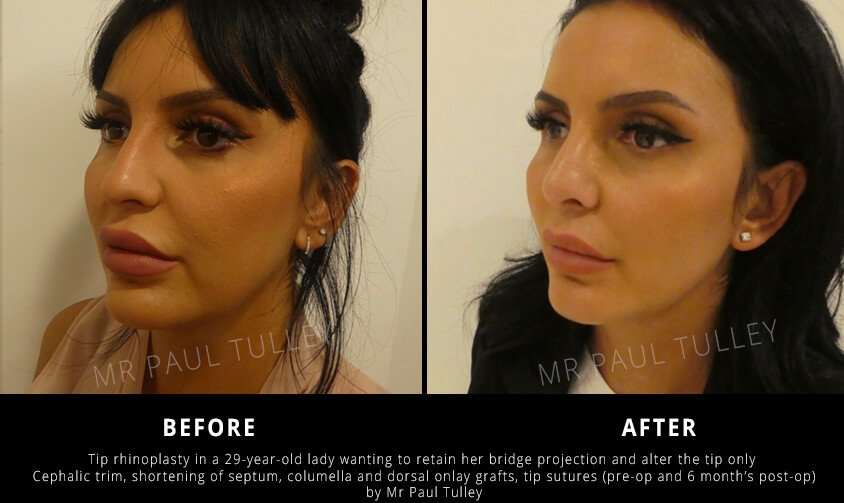 Tip Rhinoplasty London