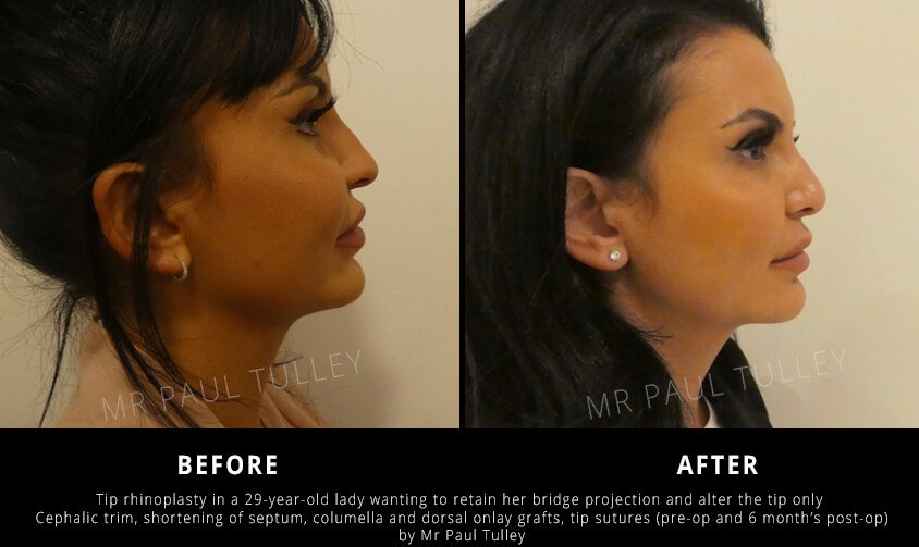 Tip Nose Reshaping London