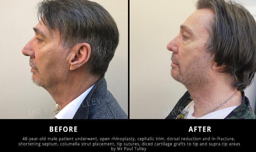 Male rhinoplasty results