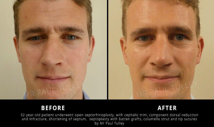 Septorhinoplasty Results