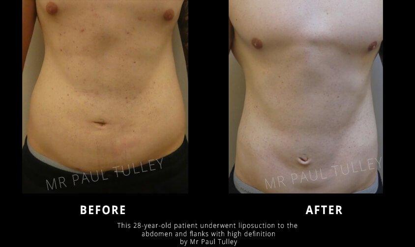 London High Definition Liposuction