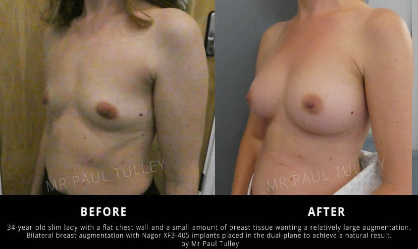 Breast Enhancement London