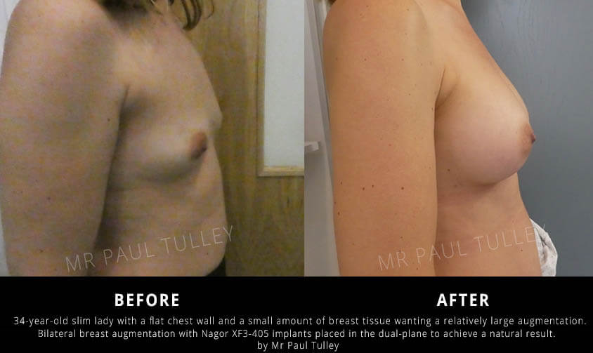 Breast Implants London