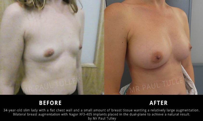 Breast Implants London