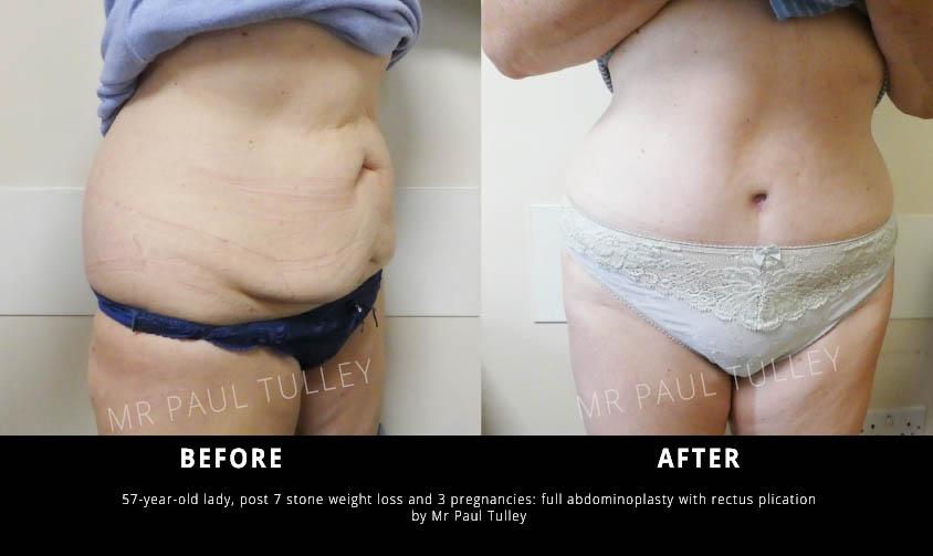 Abdominoplasty London