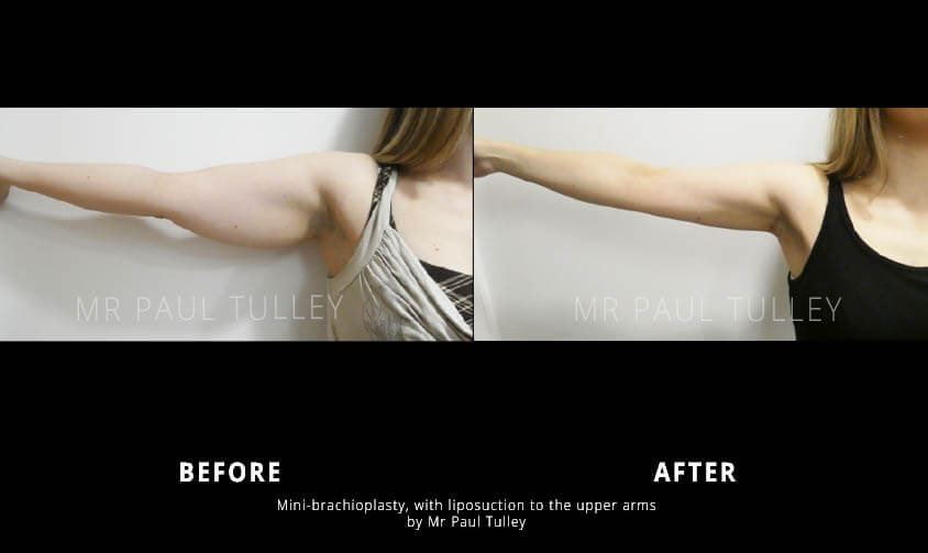 Arm Reduction with Lipo