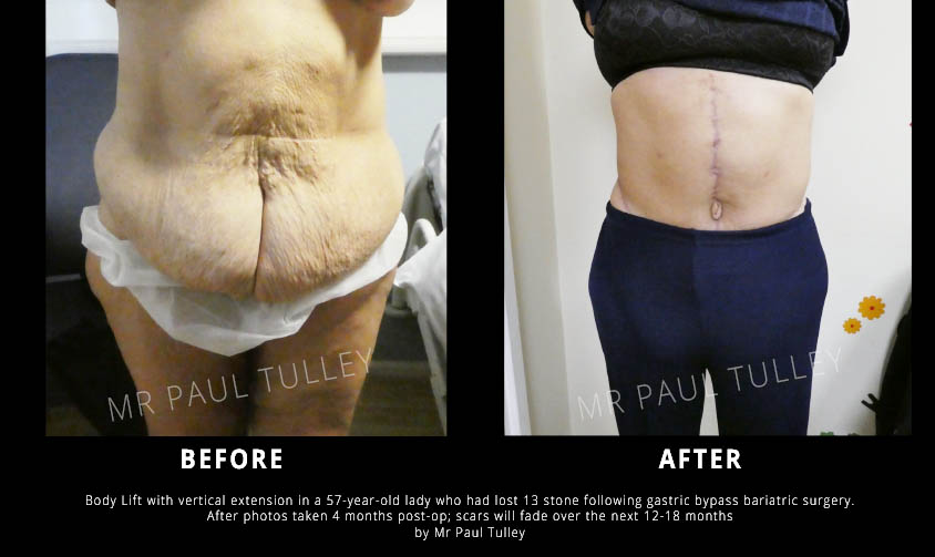 Body Lift Surgery London