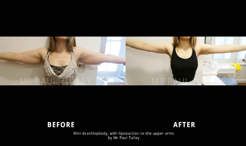 Brachioplasty with liposuction