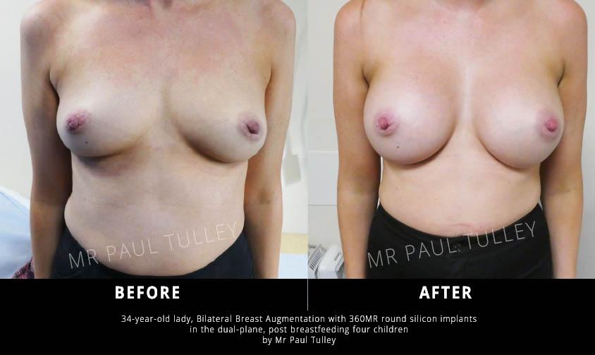 Bilateral Breast Augmentation London