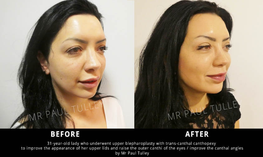 Eyelid Lift Surgery