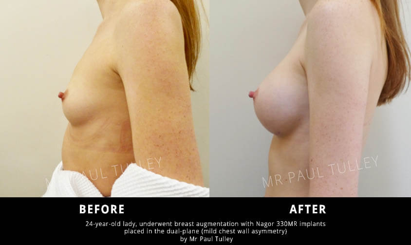 London Breast Augmentation