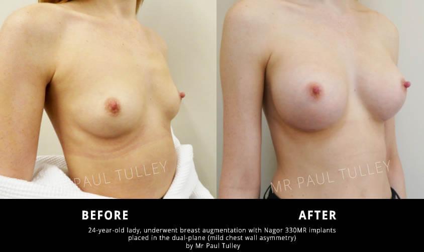 London Breast Enhancement Surgery
