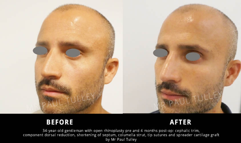London Nose Surgery