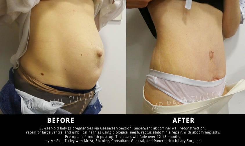Tummy Tuck and hernia repair