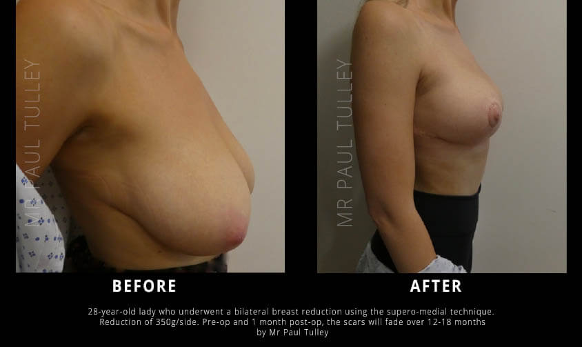 Breast Reduction London