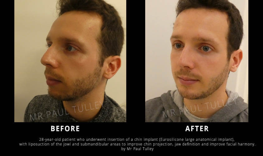 Chin Enhancement with Implant and Lipo