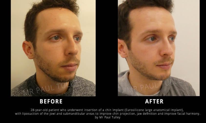 Chin Implant London
