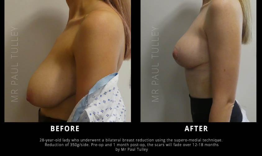 Mammoplasty Results