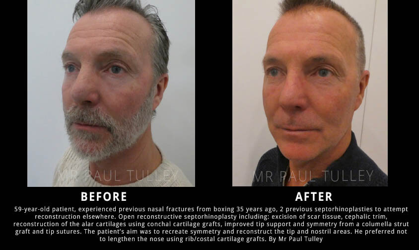 Revision Rhinoplasty to Create Symmetry