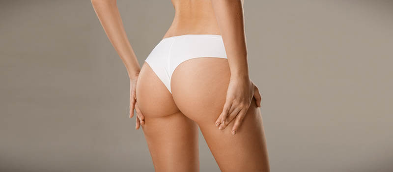 liposuction preparation