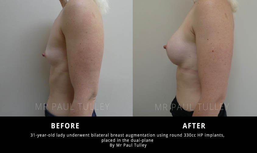Breast Enhancement Surgery Results