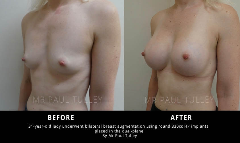 east Implant Surgery Results