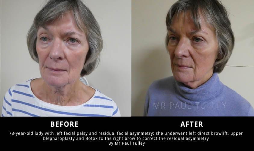 Facial Palsy Correction Results