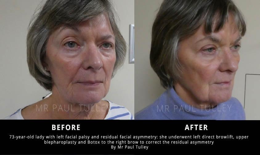 Facial Palsy Correction