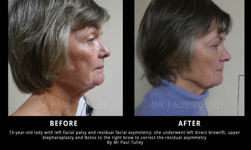 Facial Palsy Surgery Results