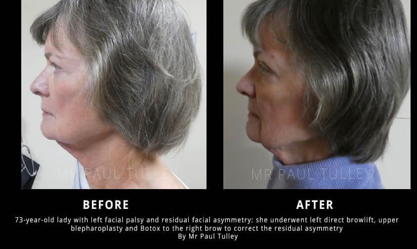 Facial Palsy Surgery