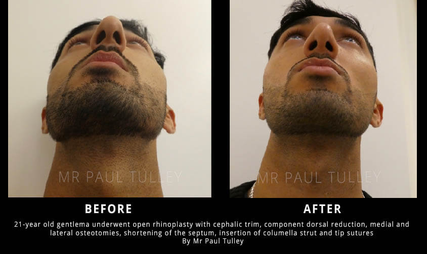 ale Nose Reduction Results