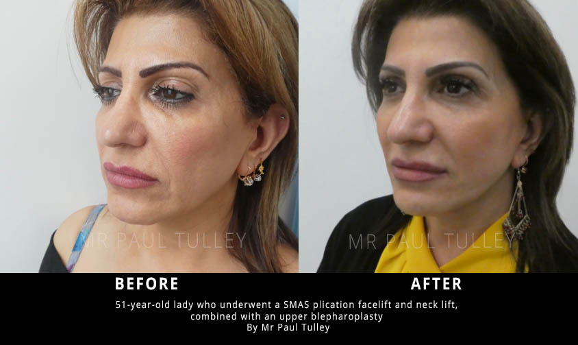 Facelift and Neck Lift Results