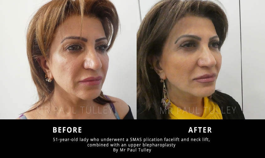Facelift and eyelid lift results