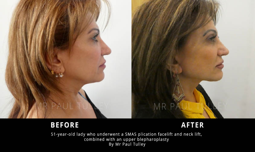 Facelift combined with blepharoplasty