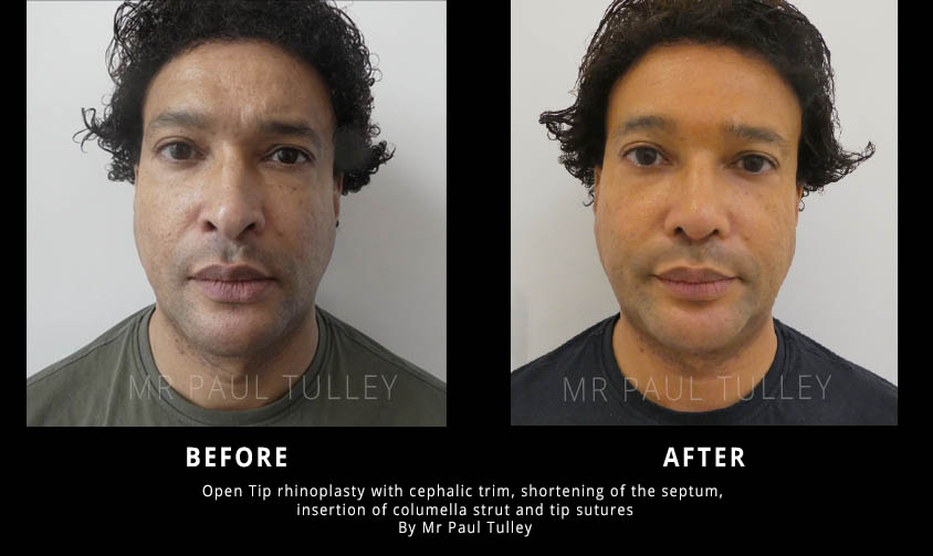 Male Nose Reshaping Surgery