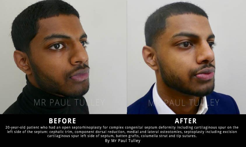 Nose Surgery to Correct Complex Congenital Deformity