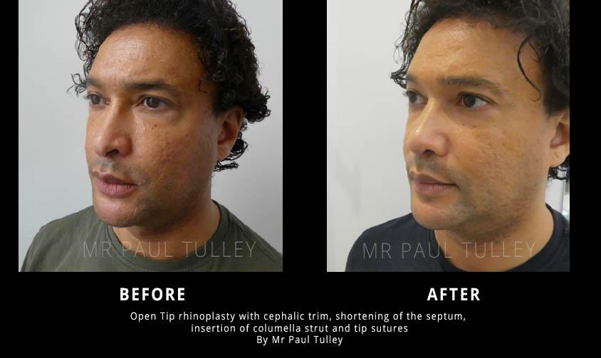 Open Tip Rhinoplasty Results