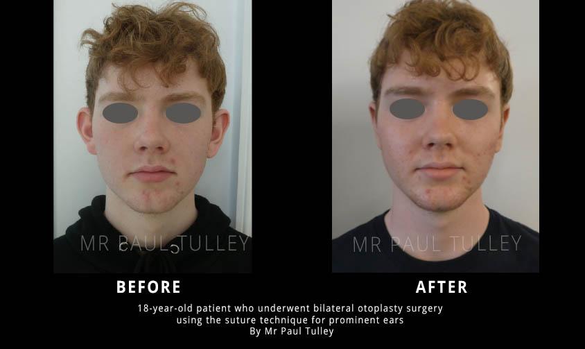 Otoplasty results