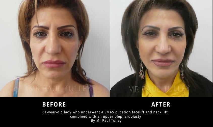 SMAS Facelift Results
