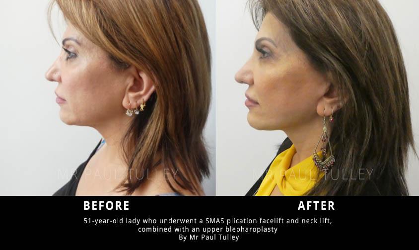 SMAS plication facelift